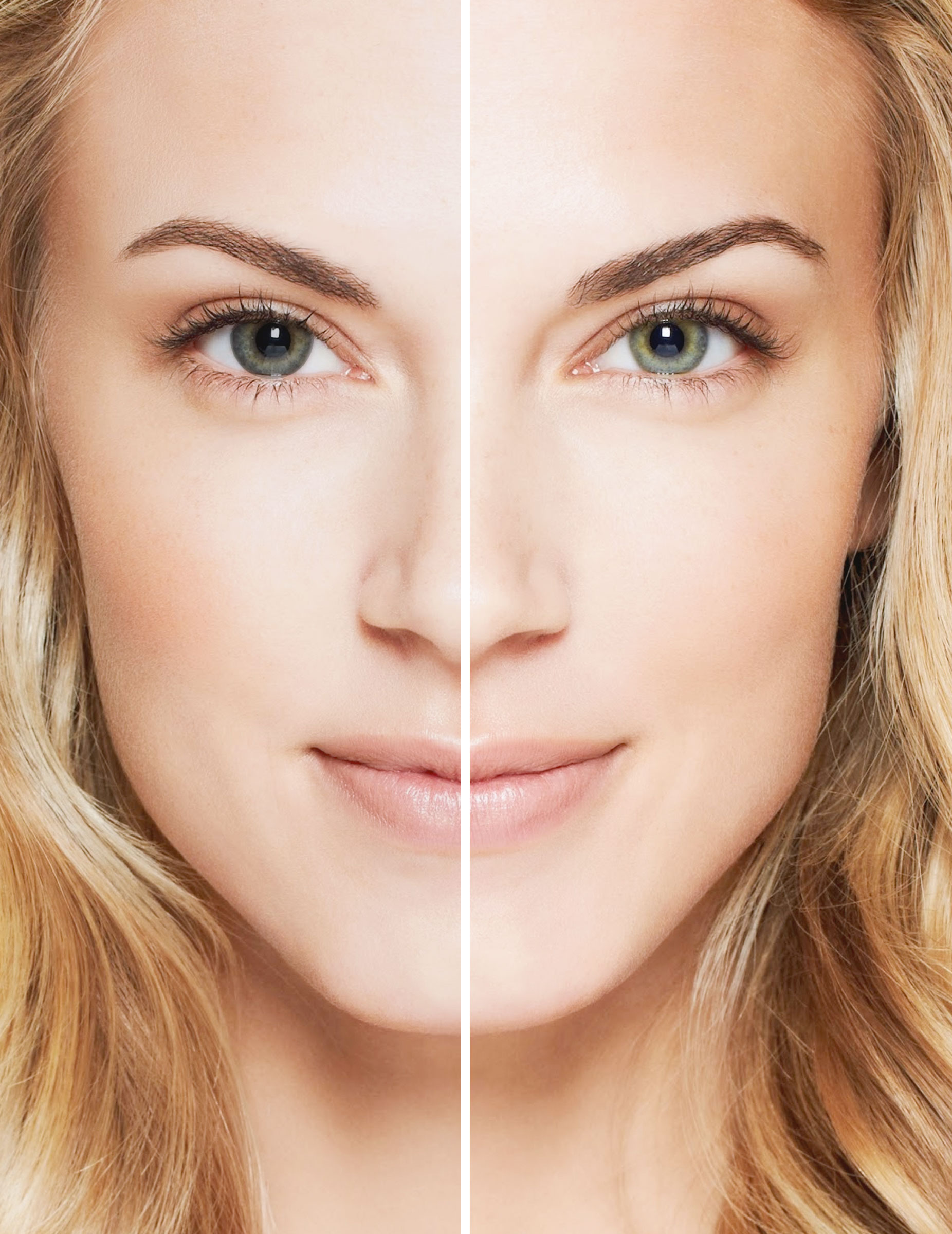 Acuvue Define Contact Lenses Before and After
